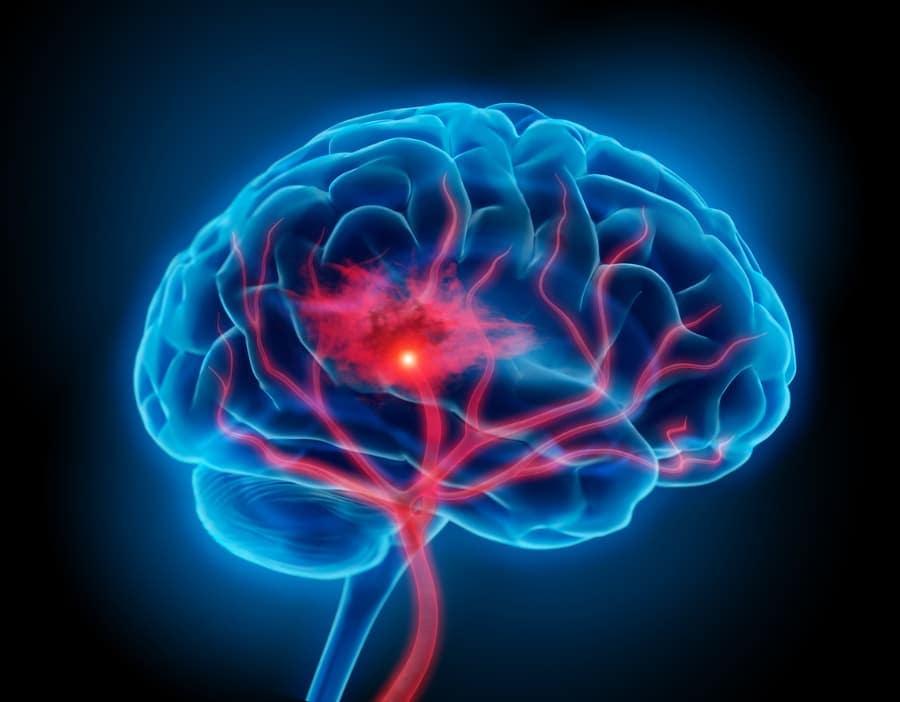 Illustration of human brain with stroke symptom