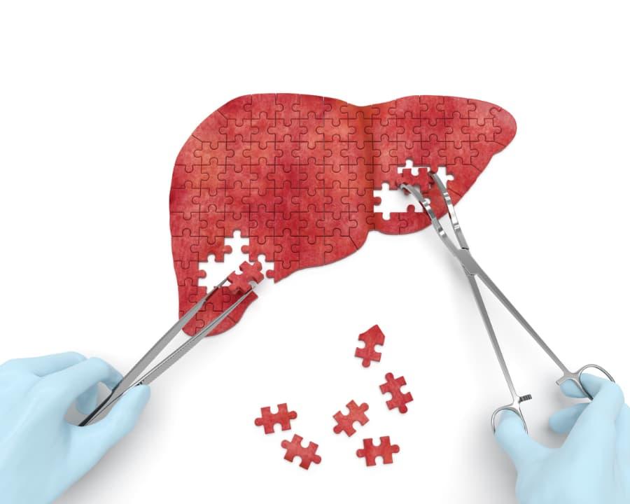 Liver operation puzzle concept art